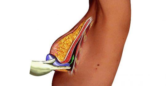 ¿Es posible la cirugía del aumento de mama sin dolor?